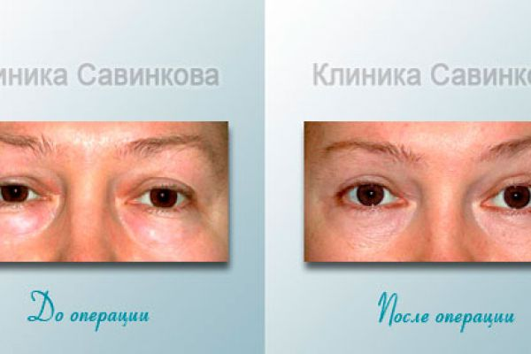 Блефаропластика (подтяжка век) фот до и после операции