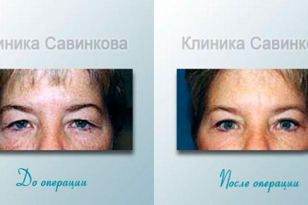 Блефаропластика (подтяжка век) фото до и после