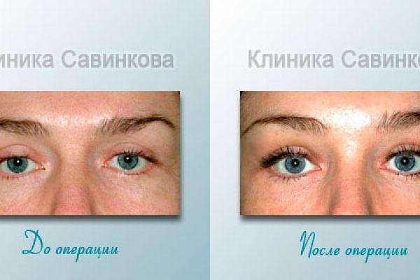 Подтяжка век в Екатеринбурге (фото до и после)