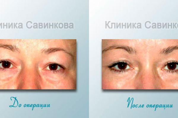 Подтяжка век в Челябинске (фото до и после)