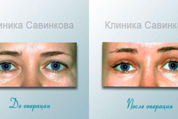 blefaroplastica-50C54FBDF-EE9F-491A-0D88-30AB6DC67C82.jpg