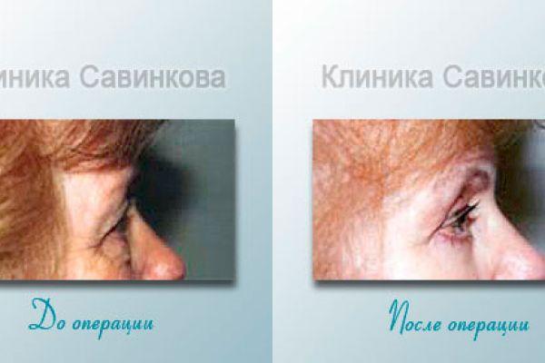 blefaroplastica-8-1753655FD-0492-C299-EC3B-CE81725C1830.jpg